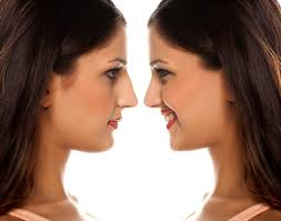 rhinoplastie et image de soi