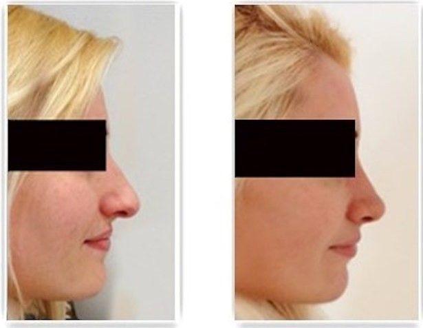 résultat rhinoplastie